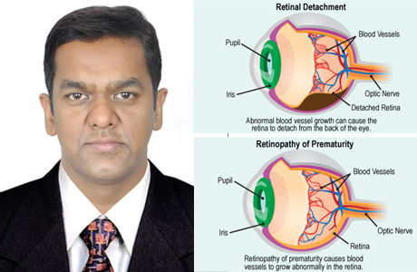 Retina Surgery and RoP can bringdown figures of blindness