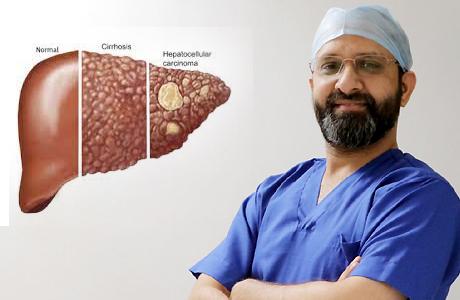 Cirrhosis patients beware of hepatocellular carcinoma