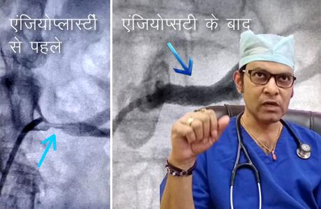 Renal Angioplasty at Hitek Hospital